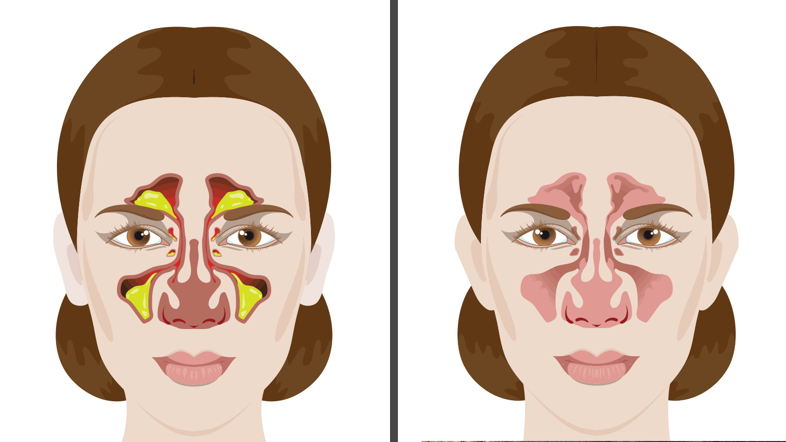 Photo of Храчки в гърлото – 10 ефективни начина да се отървете от храчки