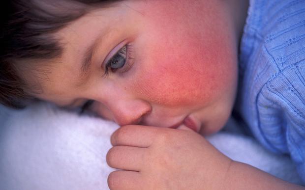 Симптоми на скарлатина при деца и възрастни