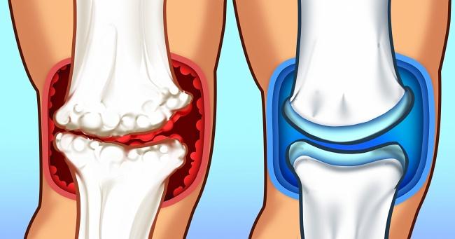 6 причини за болки в ставите