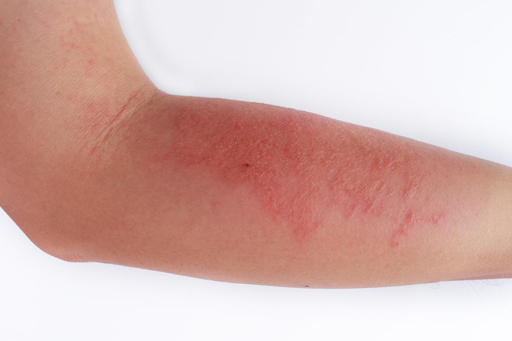 Какво е атопичен дерматит