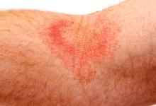 Photo of Как се лекува атопичен дерматит