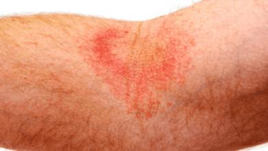 Как се лекува Атопичен дерматит