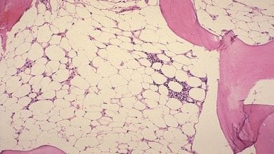Photo of Апластична анемия: симптоми, излседвания и лечение