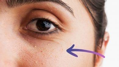 Photo of Бели точки (Милиуми) по тялото: Как се Лекуват