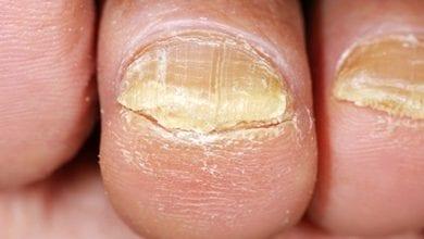 Photo of Лечение на гъбички по ноктите: Лекарства и Бабини илачи