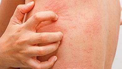 Лечение на Медикаментозна Алергия
