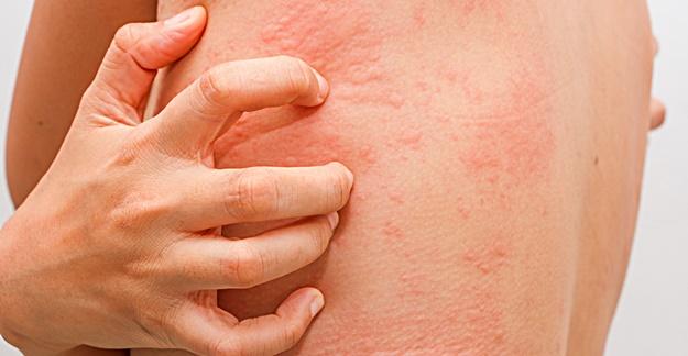 Photo of Лечение на медикаментозна алергия