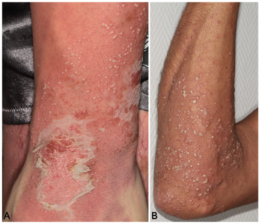 Photo of Пустулозен псориазис: 9 начина за Лечение