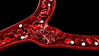 Photo of Сърповидно-клетъчна анемия –  лечение, симптоми