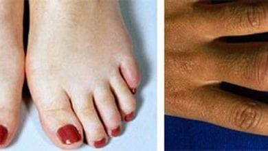 Ювенилният артрит - детска ревматична болест