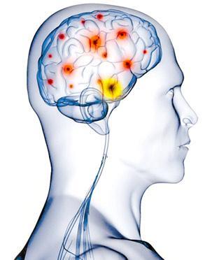 как да спрем клъстерно главоболие
