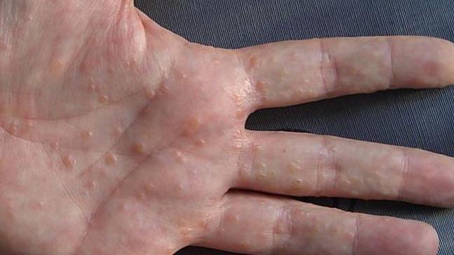 10 Народни лечения на Дисхидроза