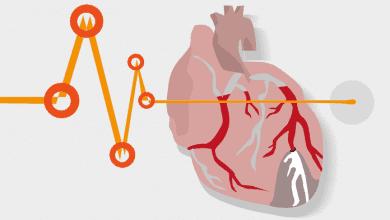 Вродени Сърдечни Дефекти: 7 Вида