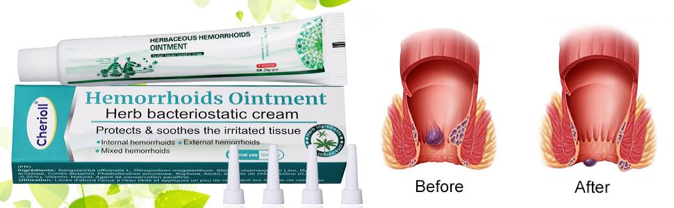 Ефикасен крем за външни хемороиди