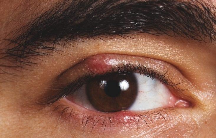 Photo of Ечемик на окото – 5 домашни средства за БЪРЗО лечение
