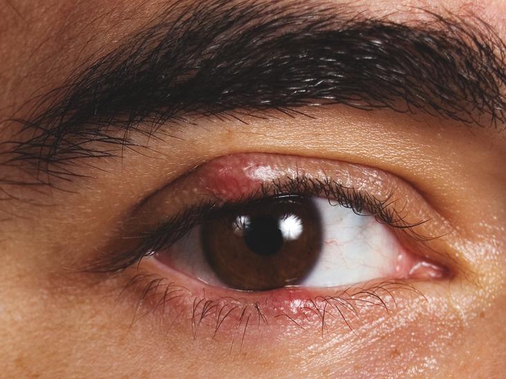 Ечемик на окото - 5 домашни средства за БЪРЗО лечение