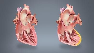 Инфаркт на миокарда: Как се разпознава