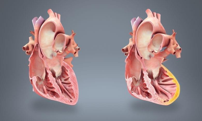 Photo of Инфаркт на миокарда: Как се разпознава