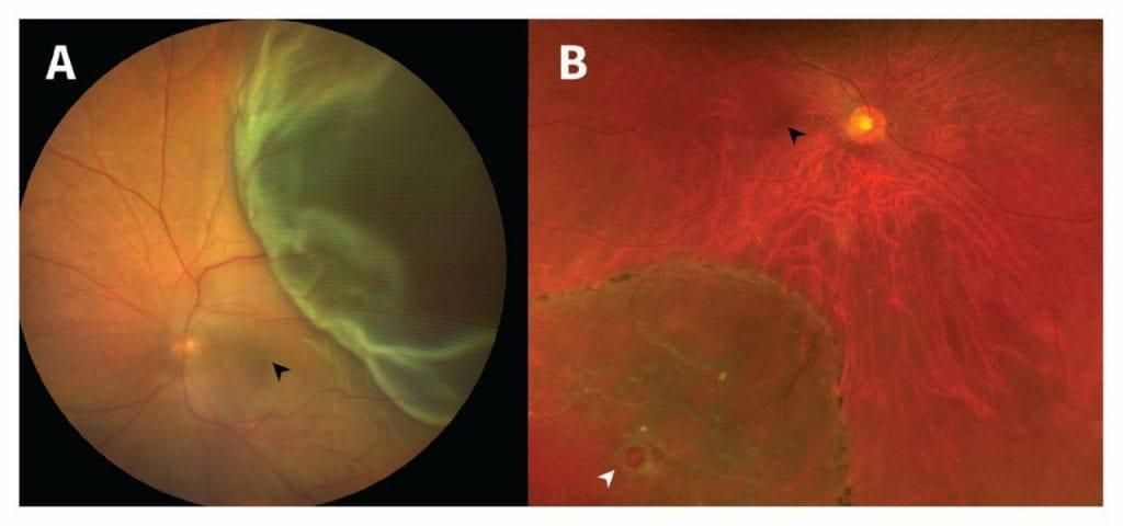 Какви са честите причини за отлепване на ретината?