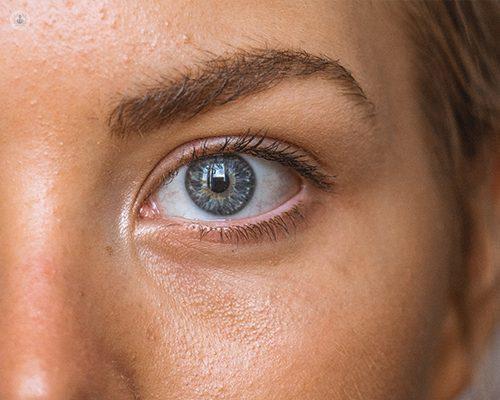 Глаукома: Какво представлява и как се Лекува