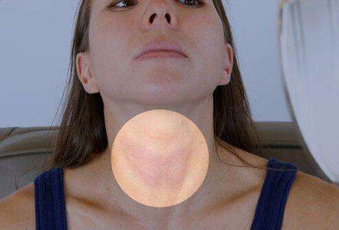 Какво причинява подута щитовидна жлеза?