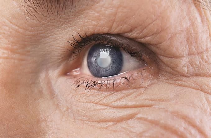 Photo of Катаракта: Видове и 4 начина за лечение