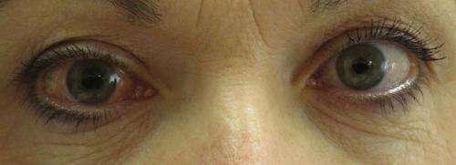 Причини за глаукома