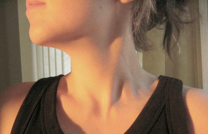 Photo of Хиперфункция на щитовидната жлеза: Хранене и Начин за лечение